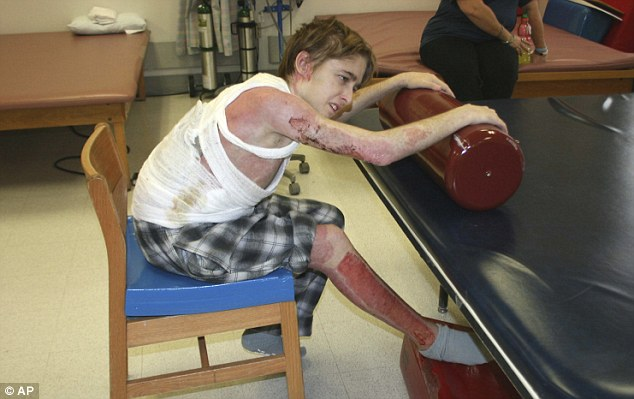 Pictured in 2009 during his recovery, 65 per cent of Mr Brewer's body was covered in burns