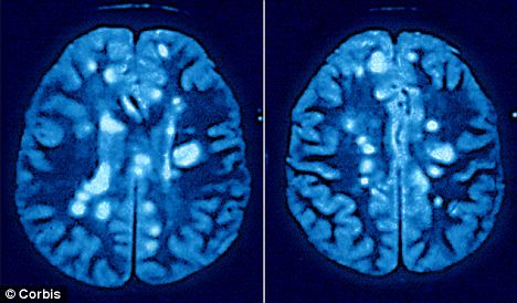 Effect of MS on the brain: This CT scan shows patches of scar tissue in white, which damage the nervous system