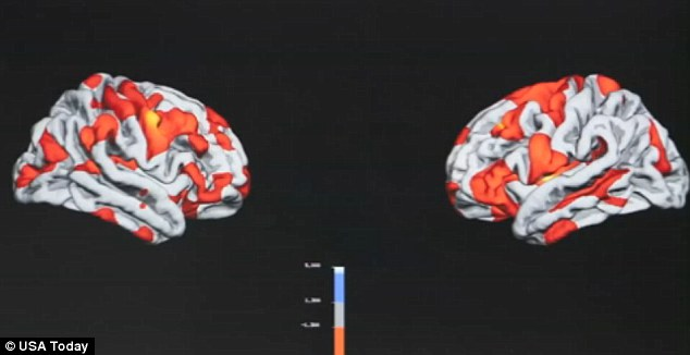 Preliminary data: This is a composite of 150 veterans measuring areas of the brain effected by PTSD; in the places that are red and yellow the higher the degree of stress the thinner the top layer of cerebral cortex