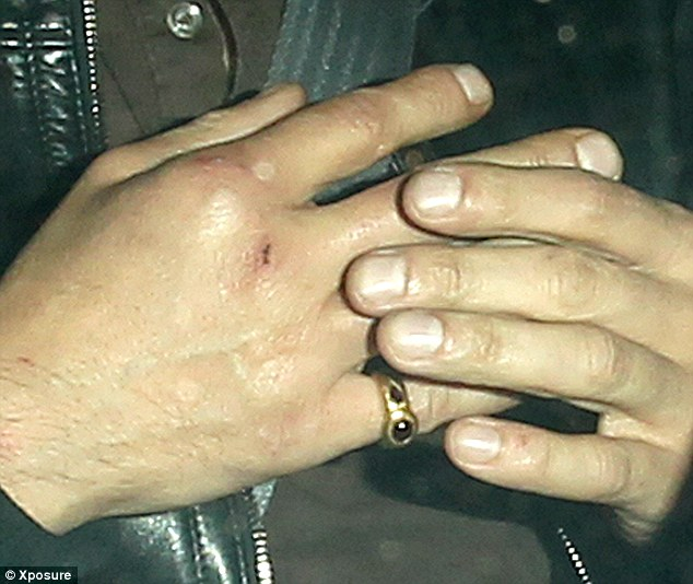 Injured: Olivier's swollen hand and bruised scuffed knuckle can be seen