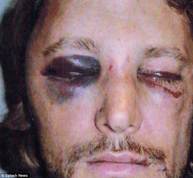 Beaten and bloodied: Aubry also has cuts under his left eye, across the bridge of his nose and on his forehead