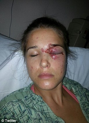 Hurt: Morgan Beck Miller nearly lost her left eye when husband and ski champion Bode Miller accidentally hit her in the face with a line drive while the two were golfing