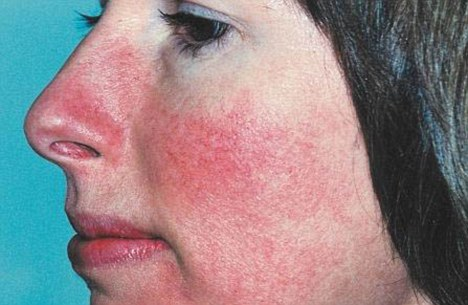 Red patches on skin in Winter