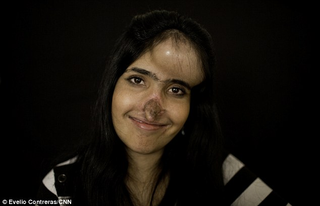 Proud: Aesha Mohammadzai, whose plight was highlighted in Time in 2010, is six months into reconstructive surgery. Doctors in Maryland will build her a new nose after hers was cut off by her husband