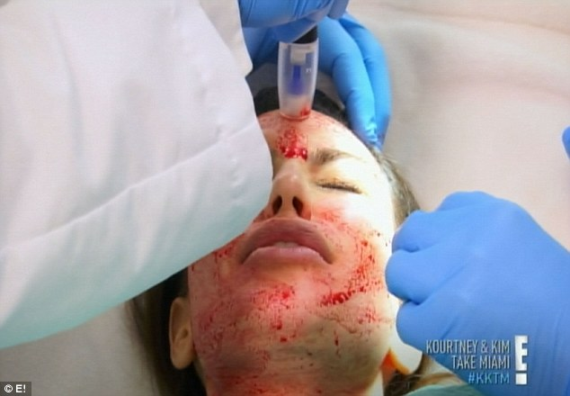 Great pain: Kim complained of pain throughout the facial