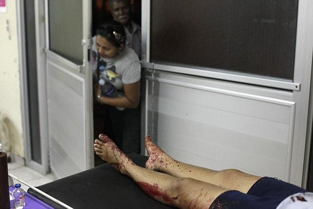 Gruesome: People peek into the emergency ward near the bloody legs of a woman who had been assaulted by her husband