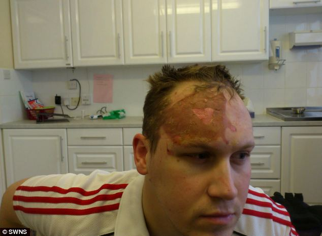 Pressure cooker injury Man suffers burns after he forces lid off to check on girlfriends