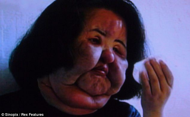 She was so disfigured that her parents did not recognise her and her story featured on Korean television