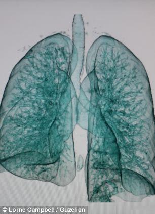 Lungs, Lorne Campbell / Guzellan. Saboteando la mir dia 24