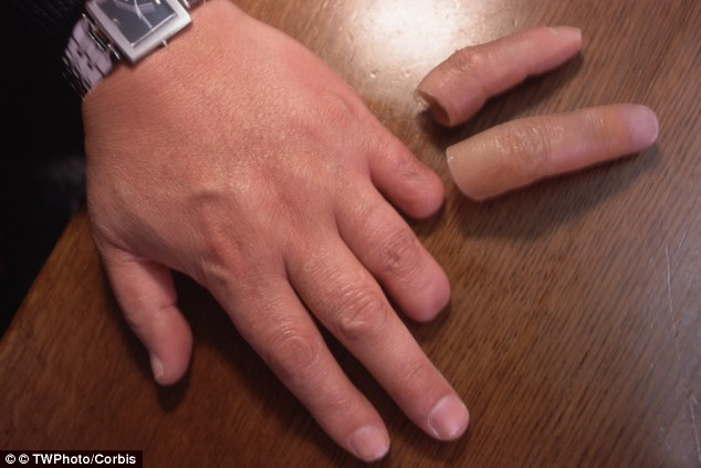 Replacement: A former yakuza member who has had to cut off his little and ring finger as punishment for breaking the 'code of conduct' shows off his prosthetics