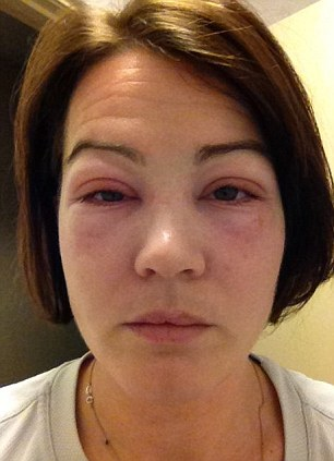 eyelids glued to her horrific allergic reactions your looks even ruined for life how
