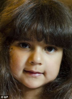 Angela Irizarry, 5, was born with a heart that had just one functional pumping chamber