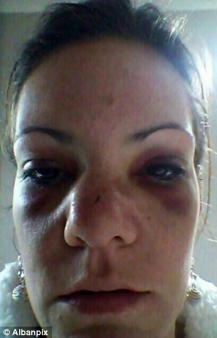 Punch-up: Krystel Coleman, 29, sister of the bride, was allegedly given a broken nose and two black eyes by her own unce