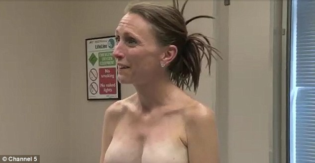 Result: The surgeons replaced her ruptured implants with new ones that left her with a perky, painfree chest