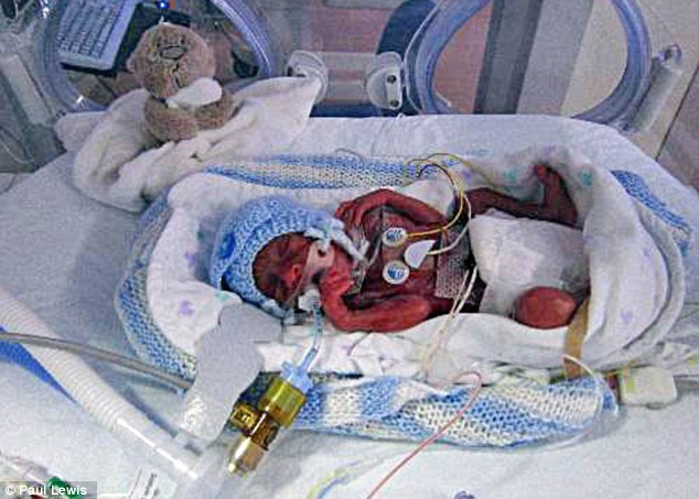 Doctors had given him just a one in four chance of survval. Yet somehow premature Lucas , pictured here at one week old in intensive care, clung to life