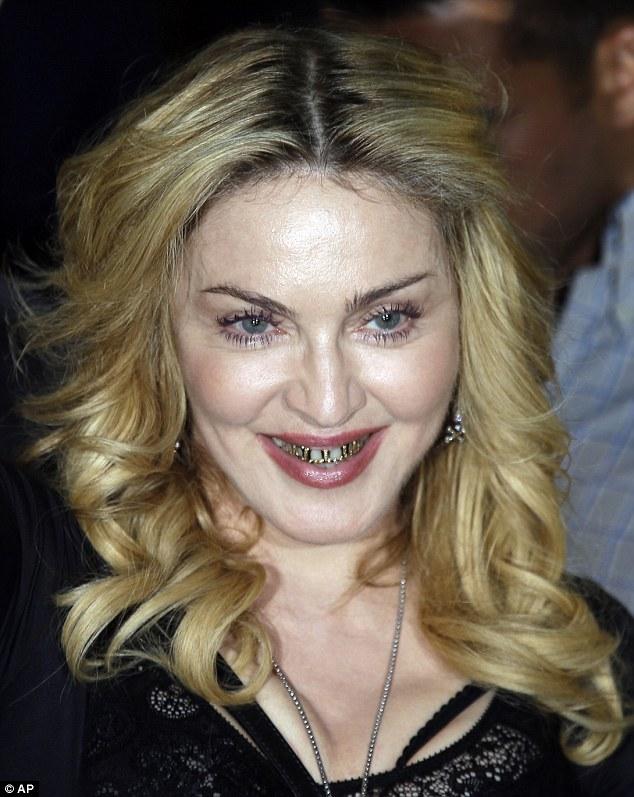Madonna Recent Plastic Surgery