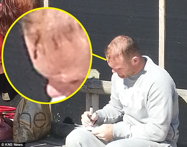 Zoom in: Wayne Rooney's head injury that keeps him out of the World Cup qualifiers has been uncovered