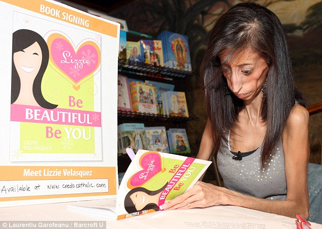 Inspiring: Lizzie, who suffers from a rare genetic disorder, is now a best-selling author of two books