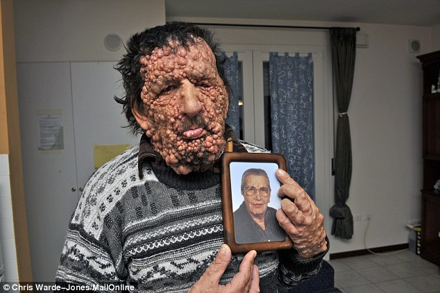 Close to his heart: Vinicio Riva with a picture of his late mother Rosaria, who suffered from the same condition he does