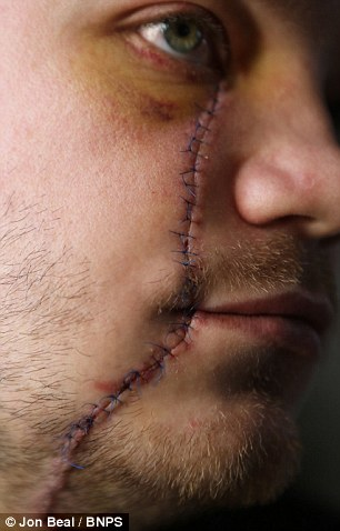 Wound: Mr Selby needed 50 stitches following the attack