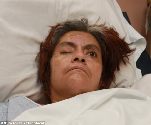 LAs Jane Doe Woman Hurt Almost Three Months Ago Still