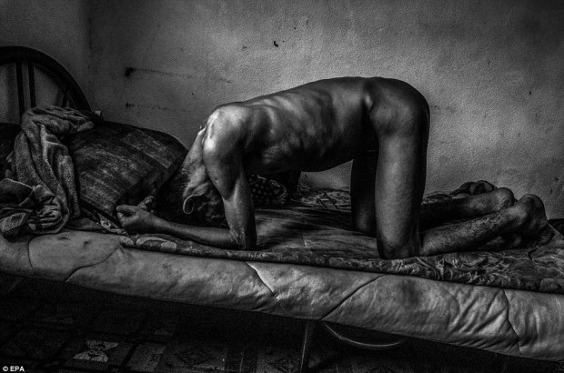 Painful: Mohammad Sani, pictured struggling with pain on his bed, in Georgetown, Penang, Malaysia, on December 11, 2013, was left unable to eat or drink