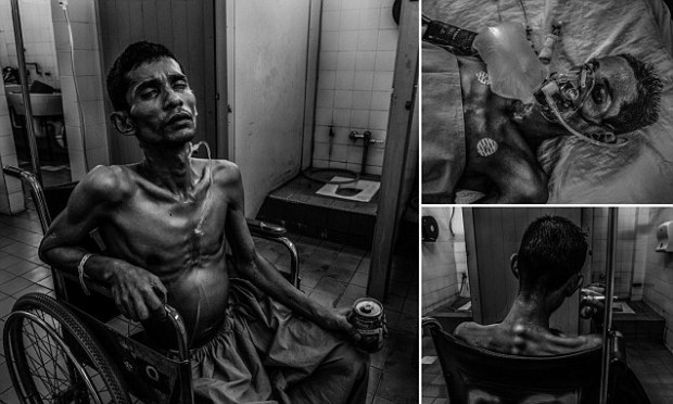 Malaysian photojournalist Ahmad Yusni documented his 33-year-old younger brother Mohammad Sani's final 39 days after he was diagnosed with terminal 'germ cell' cancer