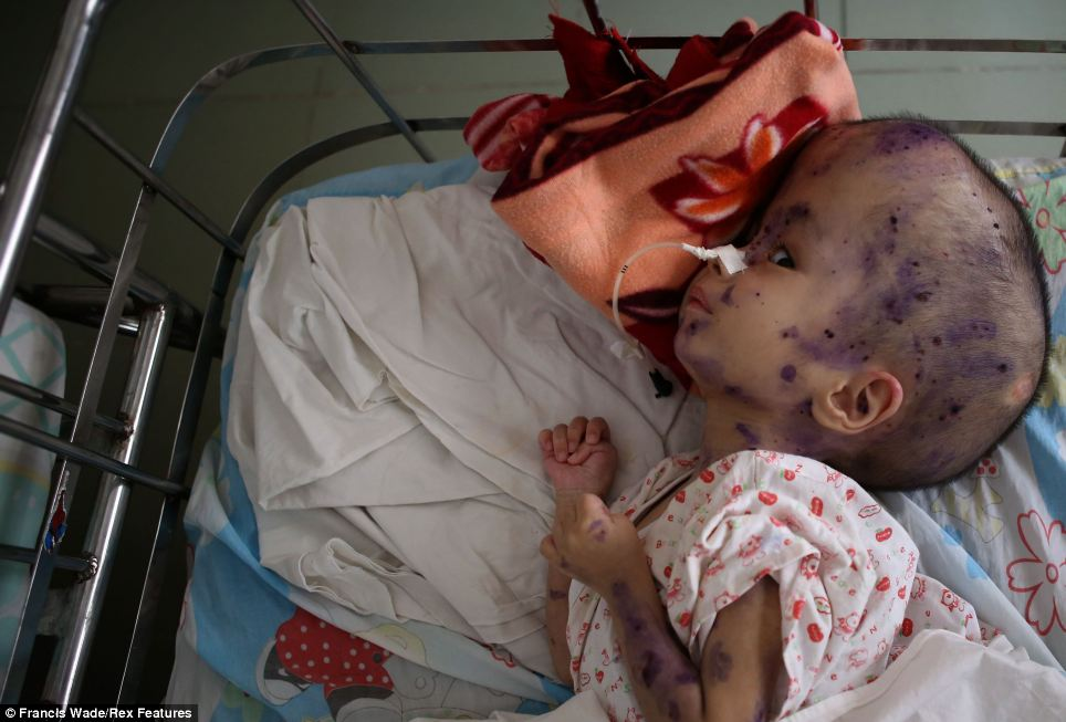 This young child, Nguyen Thanh Nhan, aged four suffers from hydrocephalus, or water on the brain, a disease associated with Agent Orange