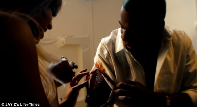 Ouch! The rapper also does not escape injury and requires some at home stitches from Beyonce in one hard to watch scene