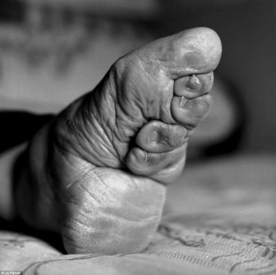 Painful: The arch was then broken and the bandages wound around the foot, pressing the toes underneath. The feet would be unbound and washed regularly, when the feet would be kneaded to soften them and the bandages reapplied even tighter