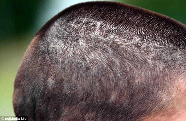 Mother Of Two Demands Criminal Investigation After Hair