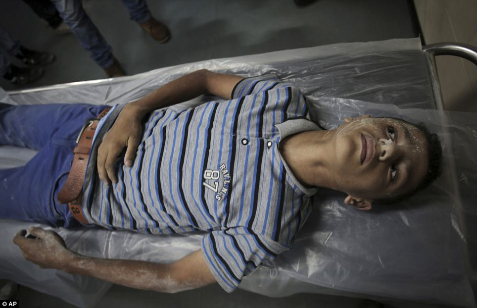 Wounded: A wounded Palestinian boy waits to receive treatment after arriving to the Shifa hospital in Gaza City. Israeli aircraft have struck more than 2,000 targets in Gaza and 261 Palestinians have been killed since the start of the fighting