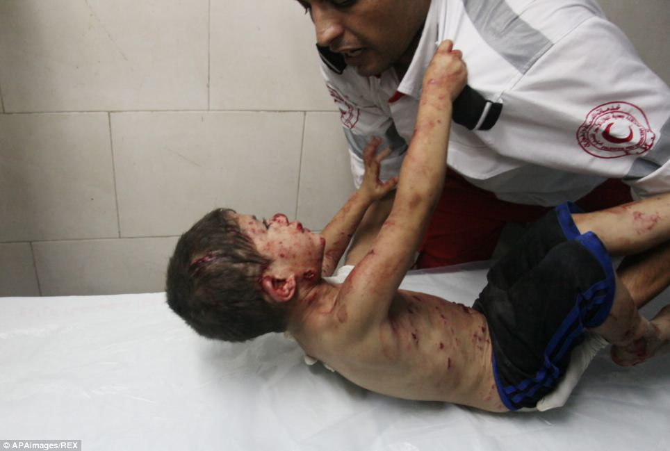 A Palestinian medic tries to comfort a wounded boy at Shifa hospital, in Gaza City as Israel continued its ground offensive deeper into Gaza today