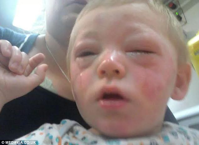 The moment little Ruben, two, was rushed to hospital by ambulance after touching the tomato ketchup