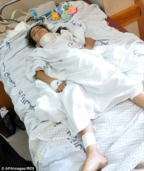 Mandatory Credit: Photo by APAimages/REX (3972813a) A Palestinian girl, who medics said was wounded in an Israeli air strike, lies on a bed at al-Shifa hospital in Gaza City Israel - Gaza conflict, Gaza, Palestinian Territories - 22 Jul 2014