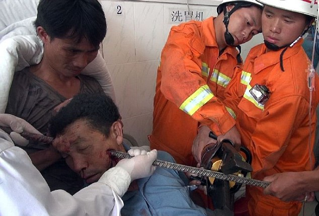 Rescue: Had the thick metal bar entered at a fractionally different angle, it would have almost certainly penetrated Mr Ho's brain or eyeball, causing serious injury or death