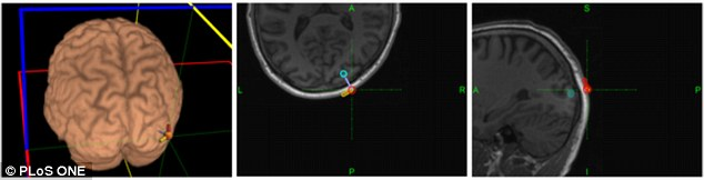 The receiver's brain (pictured) was stimulated (areas shown by dots) to see sequences of light that could be decoded into a message. Researchers then conducted a similar experiment in which thoughts were successfully transmitted from two participants, one in Spain and one in France