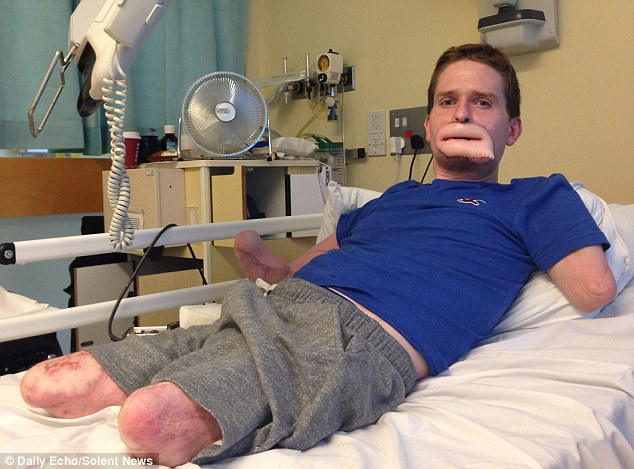 Alex Lewis, 34, lost all four of his limbs as well as his lips when a common cold turned into a flesh-eating bug last November