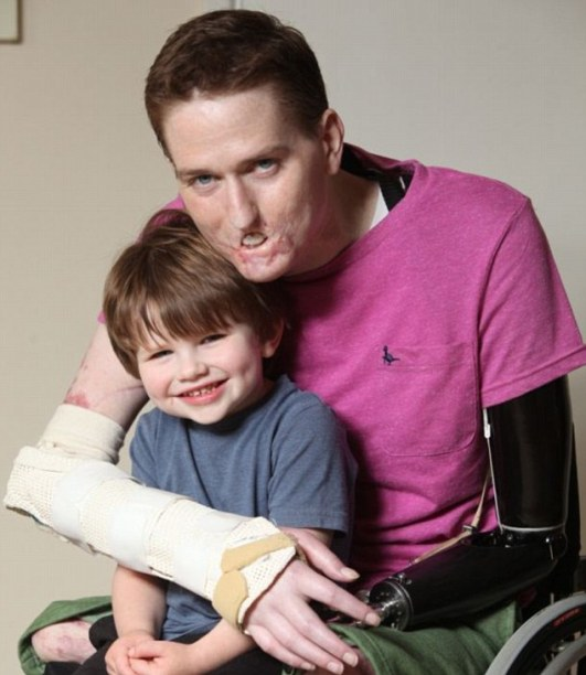 Mr Lewis (pictured with son Sam) wants his photos to be published so he can be a role model to his son and send a positive message to others with facial disfigurements