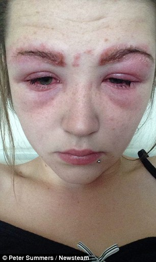 Katie Thompson was left with raw, blistered skin after her friend, who ...