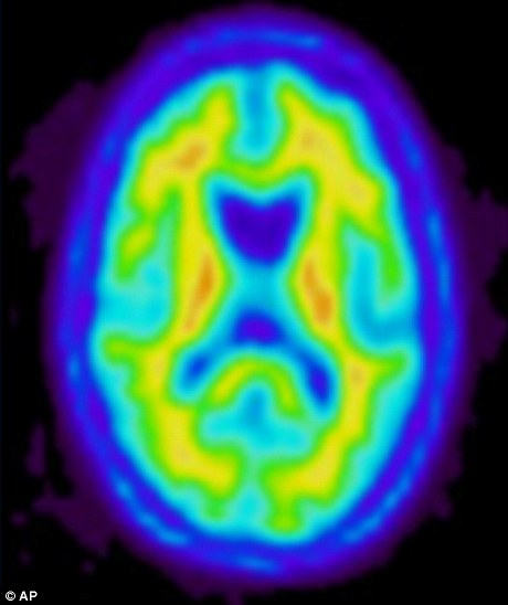 The images look similar to scans of a human brain