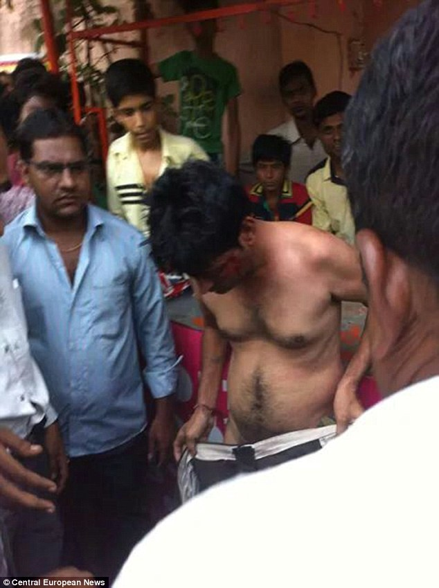 Kumar, who is now in a critical condition in hospital, covers himself up, as angry locals watch on