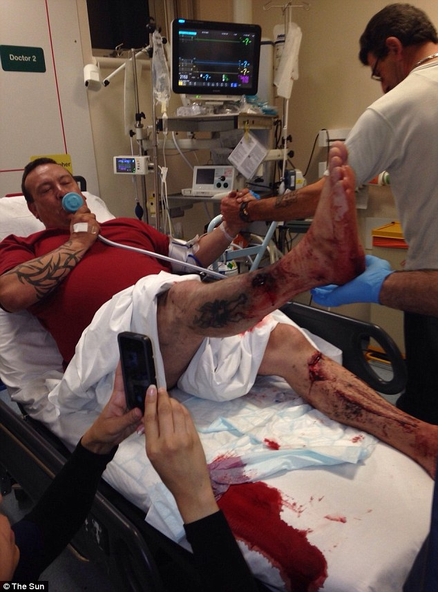 David Aspinall's e-cigarette overheated and exploded - showering his limbs with shards of metal
