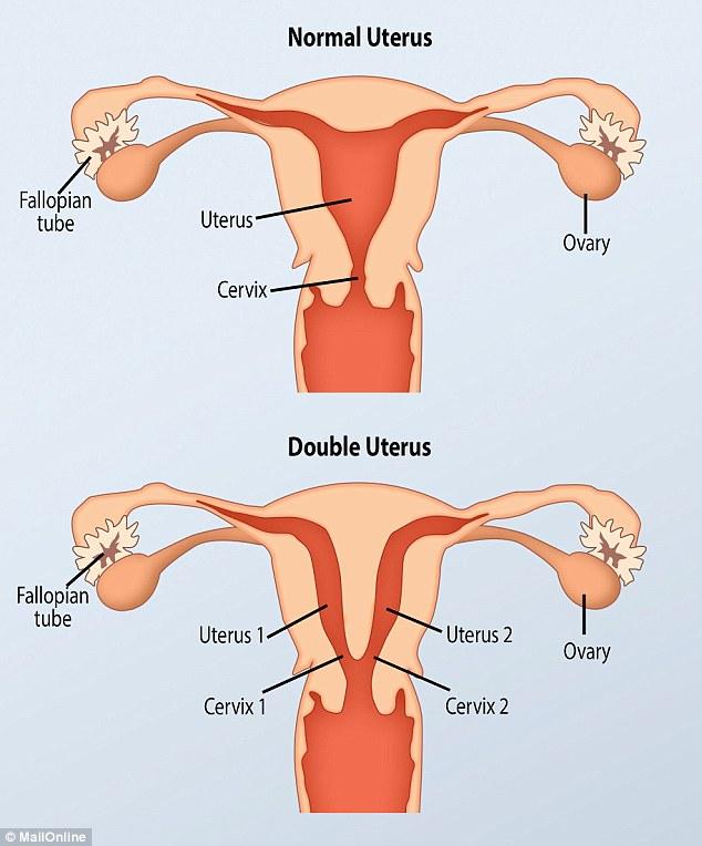 Women With Uterus Didelphys