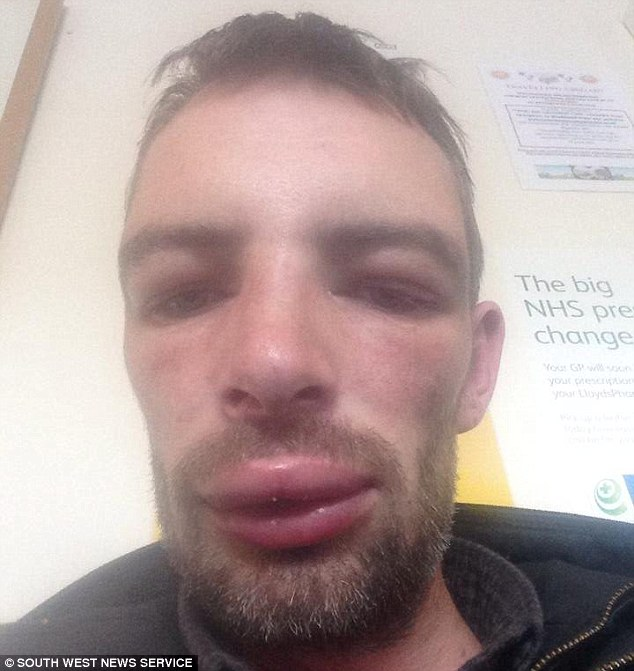 Allergic reaction to ibuprofen causes man's skin to erupt in blisters ...