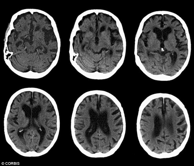 The test aims to predict a person's risk of developing Alzheimer's disease, pictured above in MRI scans