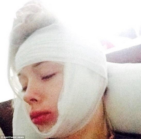 Valeria Lukyanova said she was attacked outside her home in Odessa, Ukraine on Halloween night
