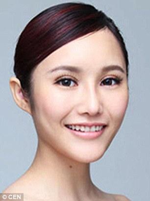 Yang Jiayi, a 21-year-old clerk, after surgery