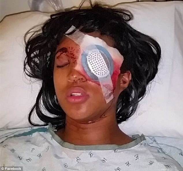 Blinded: Dornella Conner (seen in hospital) was reportedly being driven away by her boyfriend, De'Angelas Lee, from a gas station in Ferguson, St Louis, when an officer fired a 'bean bag' round at their vehicle