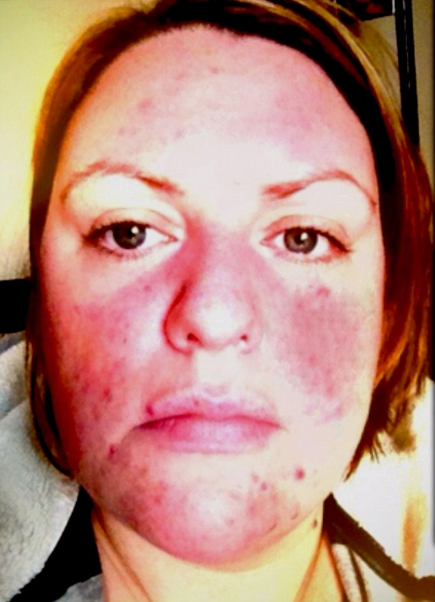 ... allergic reaction to hair dye triggered rosacea just months before her